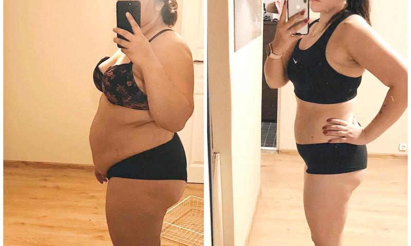 Raqueli blogi: kuidas ma mäovähendusoperatsiooniga 28 kilo kaotasin