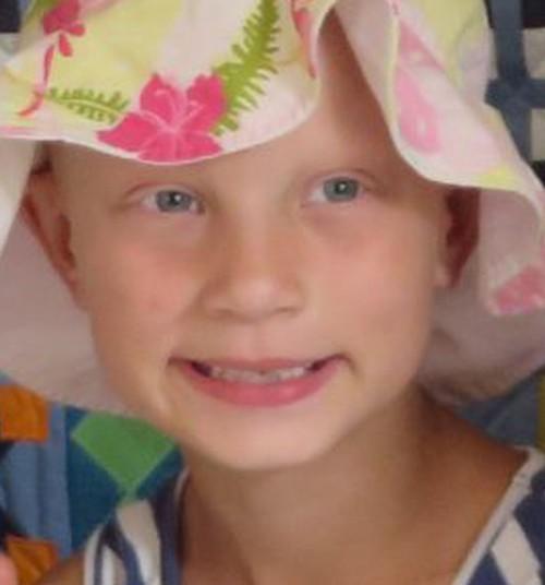 Haruldast haigust põdev Sara Sofia saab annetajate toel uue juukseproteesi