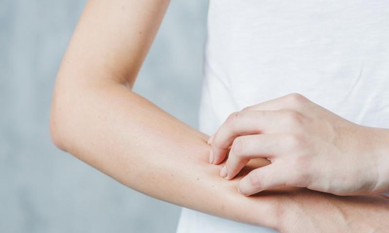 Loe, milline võib välja näha tõsine allergiline reaktsioon