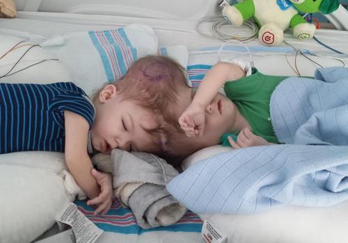 Maailmakuulsad siiami kaksikud Jadon ja Anias on viimaks eraldatud