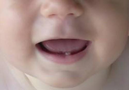 Kauem kui teise eluaastani imetamine võib põhjustada hambakaariest