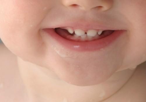 Hammaste krigistamine ehk bruksism väikelastel - mis seda põhjustab?