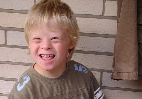 Liigutav video Downi sündroomiga tüdrukust