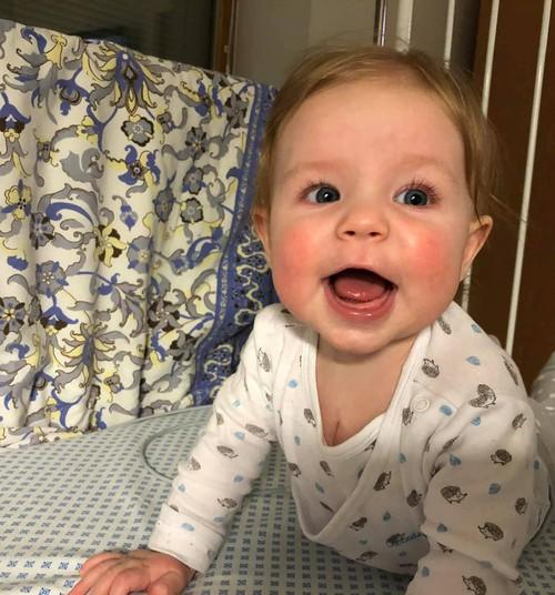 Südamerikkega sündinud beebi Brianna vajab annetajate abi